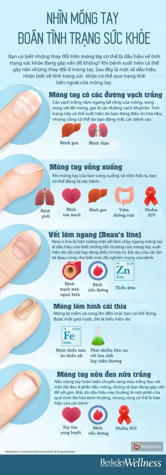 Biểu hiện bất thường trên móng tay cảnh báo bệnh nguy hiểm